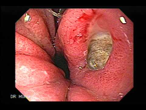 Real human esophagus - photo#16