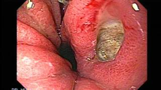 Gastric Ulcers Overture