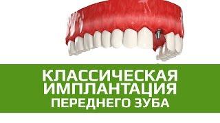 Двухэтапная имплантация зубов с отсроченной нагрузкой. Восстановление переднего зуба(Классический подход подразумевает отсроченную нагрузку на имплантаты – им обязательно требуется время..., 2015-06-30T10:40:00.000Z)