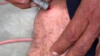 Removing shrapnel with magnet