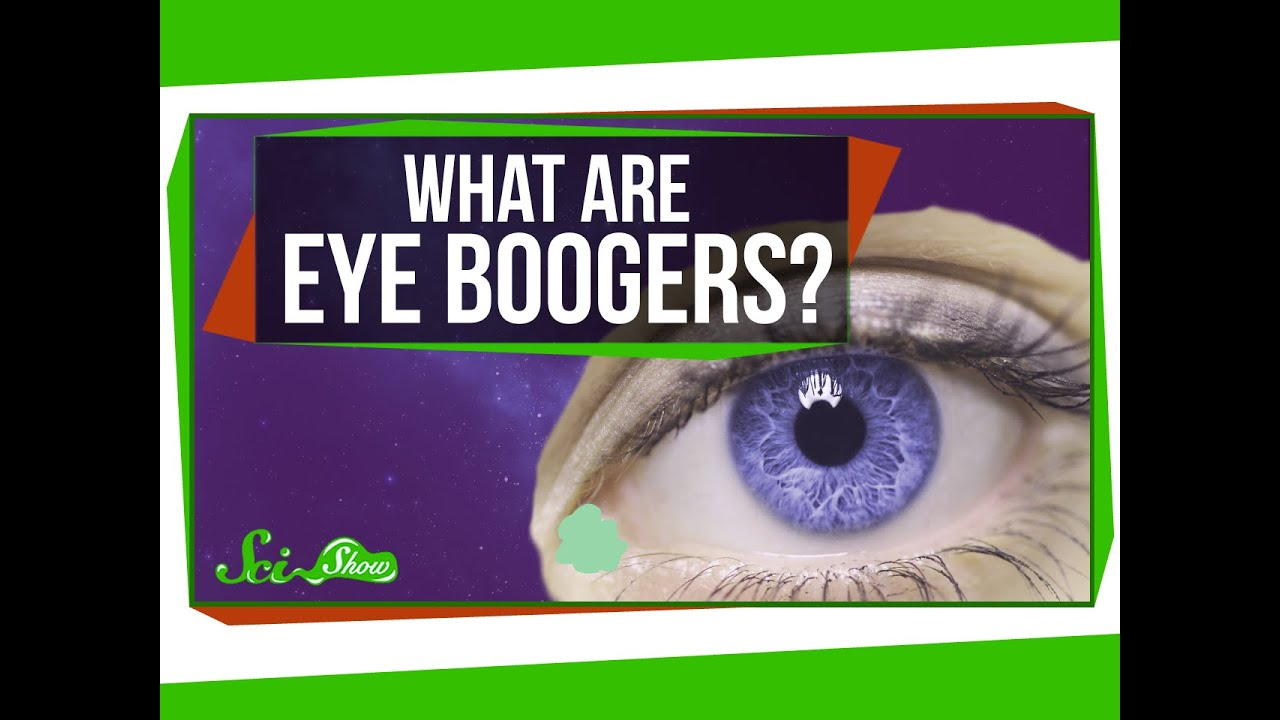 What Are Eye Boogers - Eye Health Questions