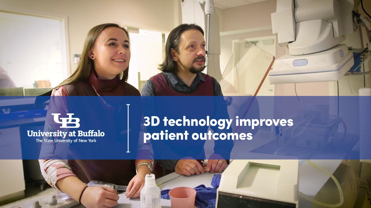 UB's 3-D printing research gives surgeons a behind-the-scenes look at life-threatening diseases