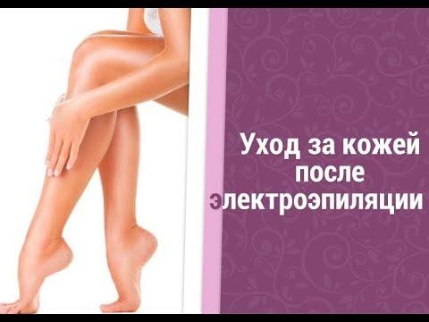 Как ухаживать за кожей после электроэпиляции