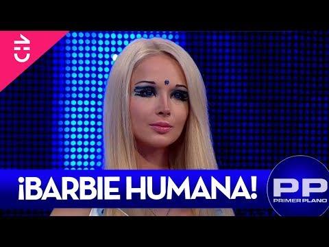 La Barbie Humana reveló impactantes detalles de su vida - PRIMER PLANO