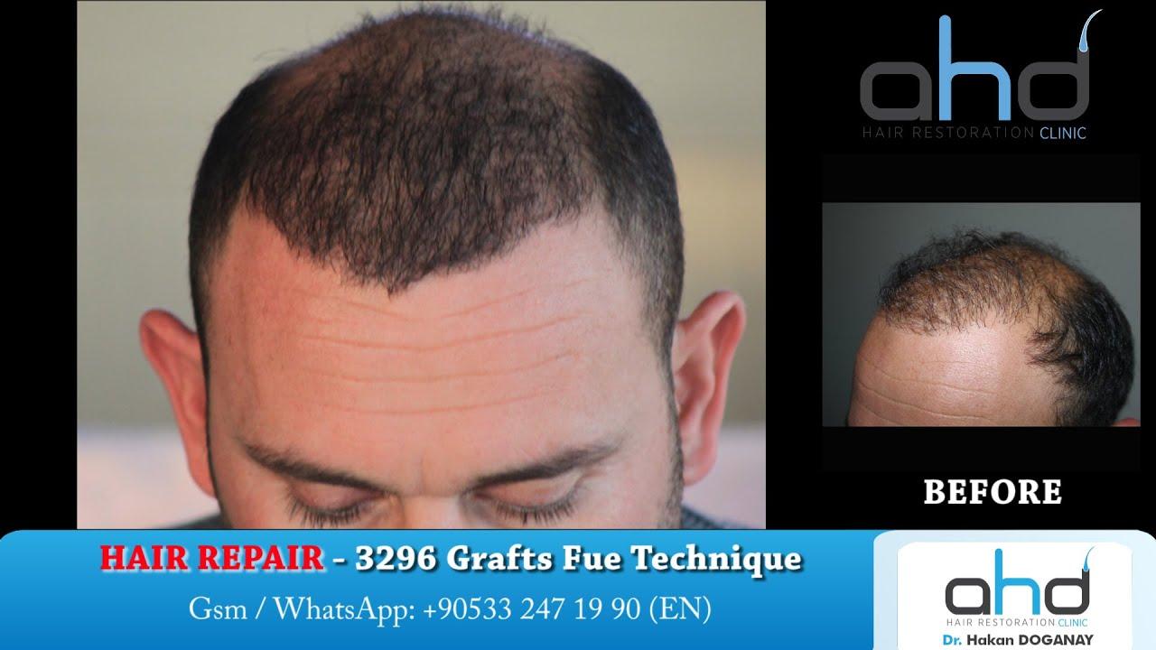 Hair Transplant Repair 2016 Fixing Bad Hair Transplants Dr Hakan