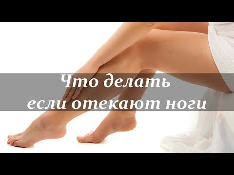 Отек – Лечение отёков ног народными средствами и методами