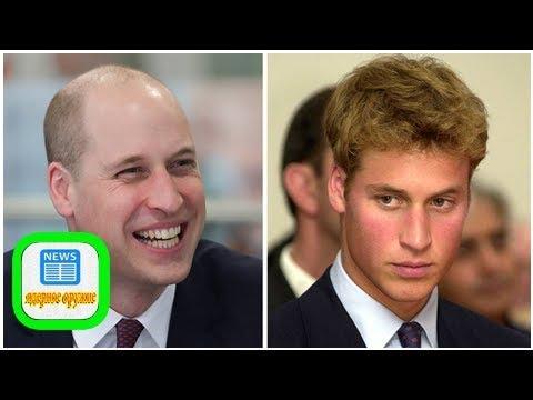 Prinz William Warum Alle Ihn Für Seine Neue Frisur Feiern Und Was