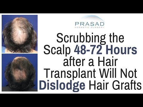 When Transplanted Hair Grafts are Secure Enough to Allow Scalp Cleaning and Scrubbing