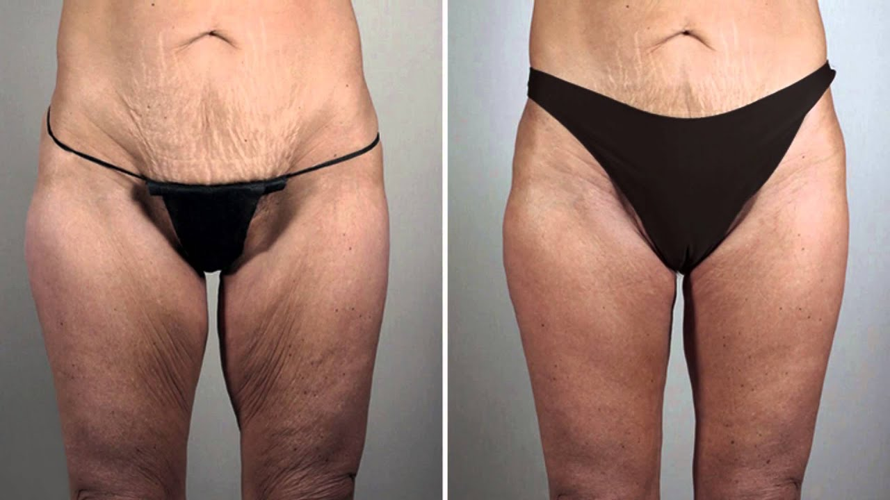 Loose skin after weight loss dating 8
