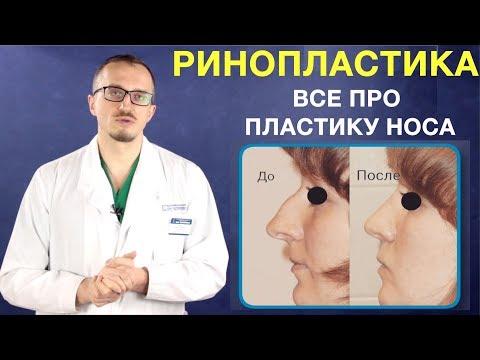 Ринопластика носа. Пластика носа. Изменение формы носа операция. Ринопластика и кифопластика