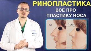 Ринопластика носа. Пластика носа. Изменение формы носа операция. Ринопластика и кифопластика(, 2018-03-19T21:35:17.000Z)