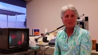 Eye Floaters - Treatment, Testimonial and Prevention