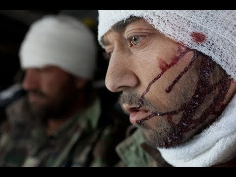 В шаге от войны Раненые в Сирии 'вагнеровцы'