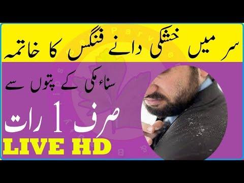 Hair Dandruff Solution At Home - Hair Dandruff Solution 100% Result Urdu-hindi - Get Rid Of Dandruff