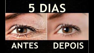 Como Retirar Olheiras E Inchaço Nos Olhos