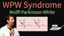 WPW / Wolff-Parkinson-White Syndrome: ECG / EKG findings, symptoms, pathology, & treatment
