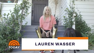Model Who Lost Legs To Toxic Shock Syndrome Shares Inspiring Mission | TODAY