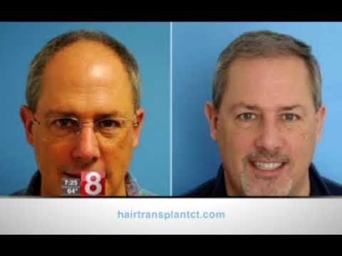 Hair Transplant for Job Interview - Dr. Scott Boden