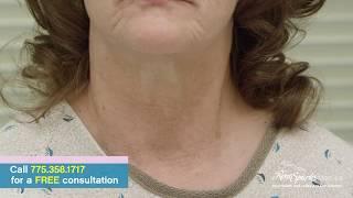 Platelet Rich Plasma for Neck Rejuvenation - Reno Sparks MedSpa - Dr. Calvin Van Reken