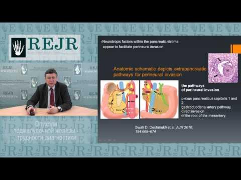 Опухоли поджелудочной железы: трудности диагностики