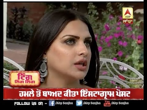 Himanshi Khurana First Post After Being Attacked in Canada | Himanshi Attack
