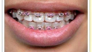 تقويم الأسنان - معلومات مفيدة مع الصور