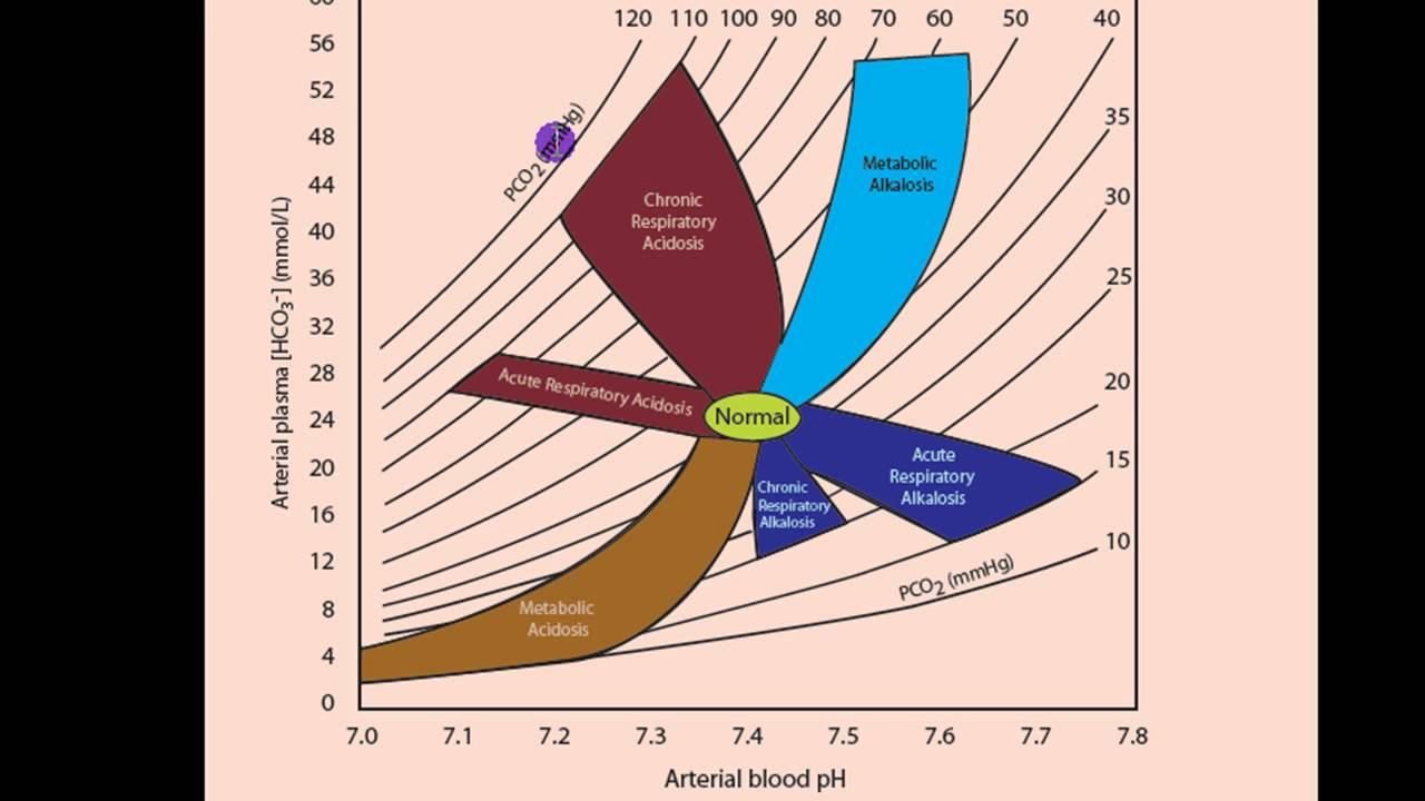 medium resolution of acid base diagram