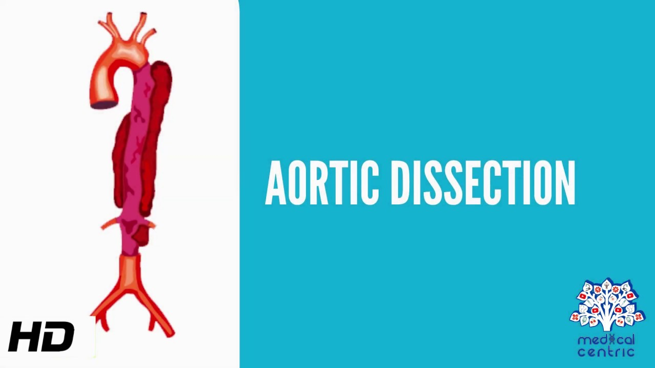 Aortic dissection (AD), Causes, Signs and Symptoms, Diagnosis and Treatment.