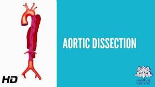 This video demonstrates the steps of an acute type A aortic dissection repair. This video was produc.