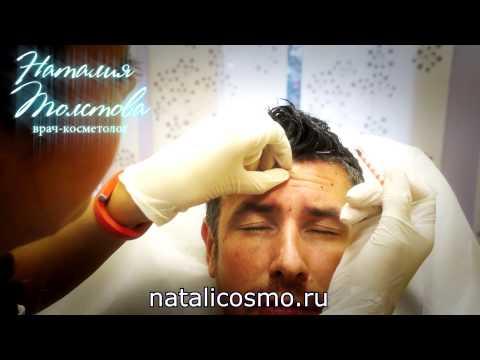 Мужская косметология (омоложение)