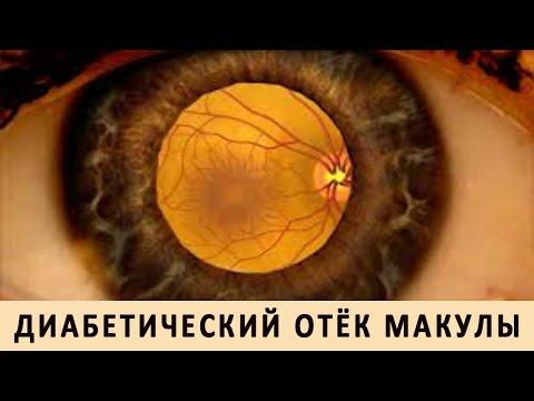 Диабетическая ретинопатия - лечение, симптомы и профилактика