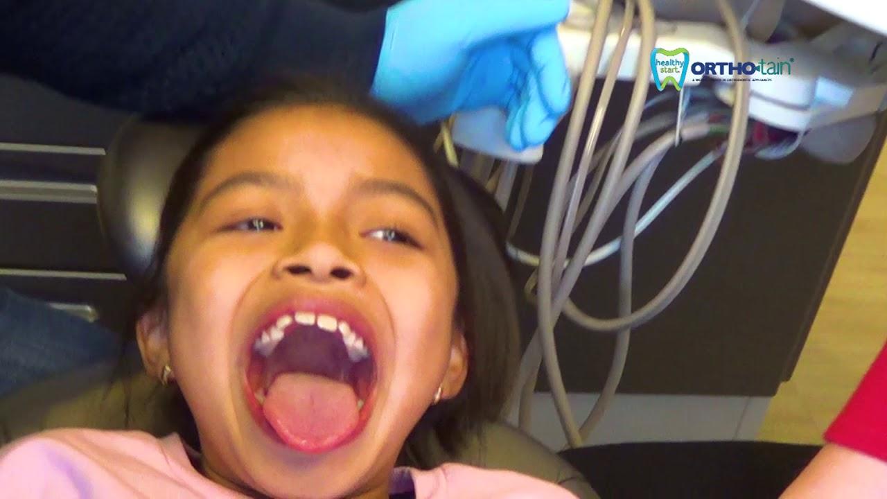 lil teeth aurora colorado youtube