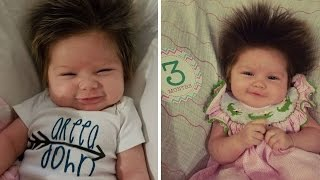 Adorable 3-Month-Old Girl With Full Head of Hair Is Making Heads Turn