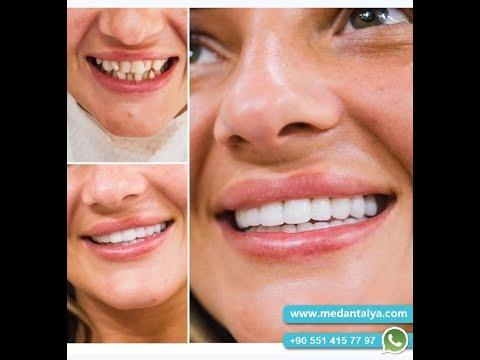 Enhanced beauty with dental crowns | New teeth