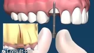 Новый способ удаления зуба в Новокузнецке/ Стоматология Новокузнецк.(, 2015-01-02T19:22:02.000Z)