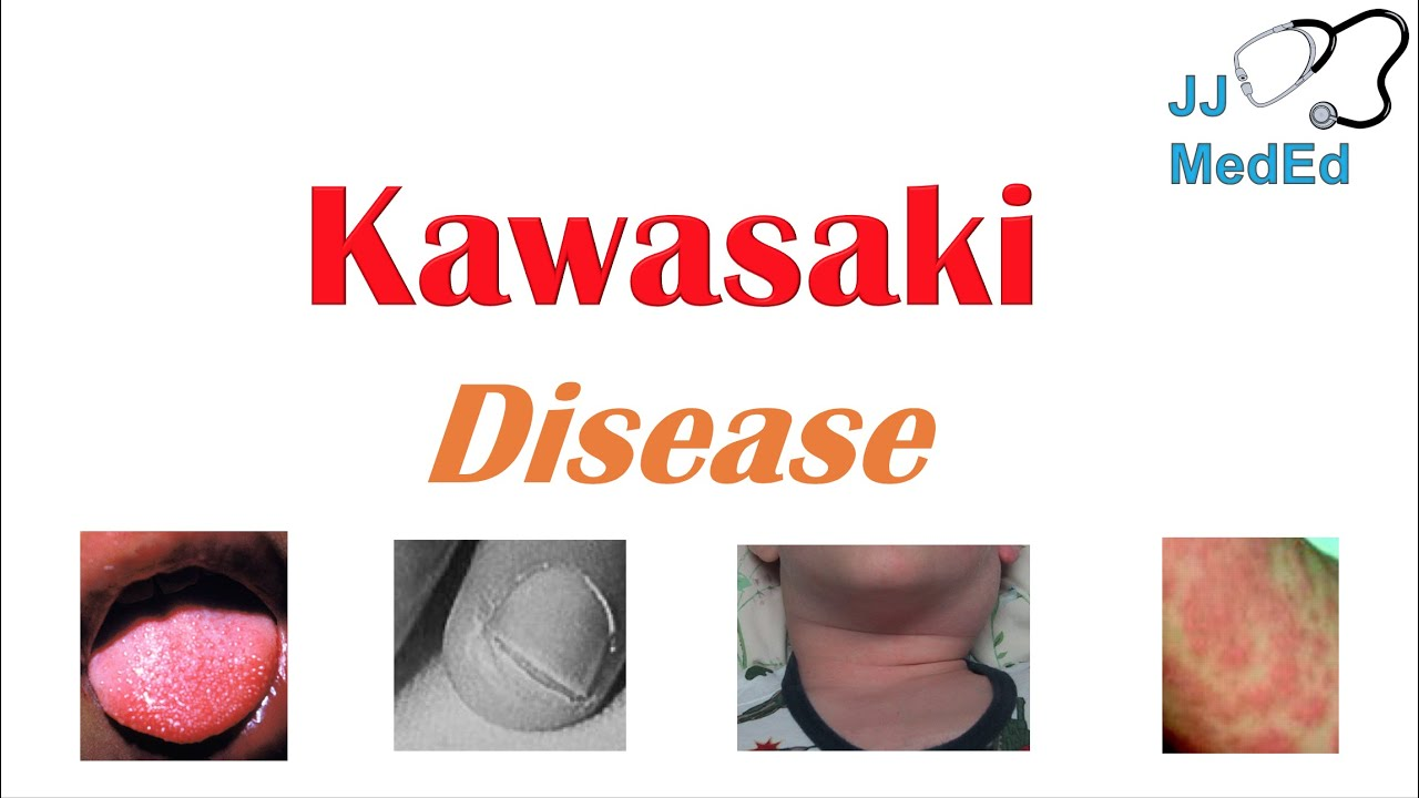 Kawasaki Disease | What is it, symptoms, treatment and devastating complications (ex. heart failure)