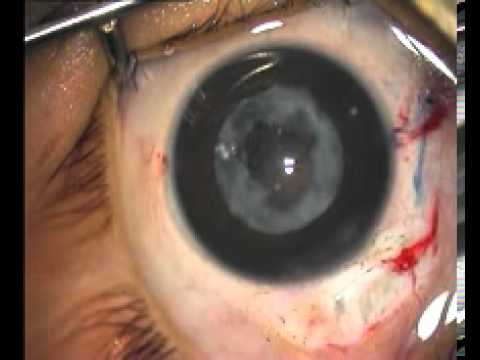 Cataract Surgery in Children