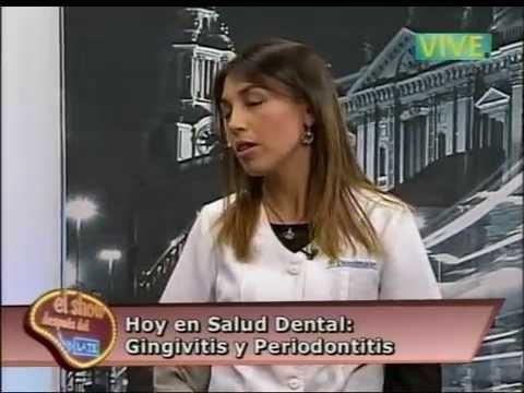 Gingivitis, inflamación e infección que destruyen los tejidos de soporte de los dientes