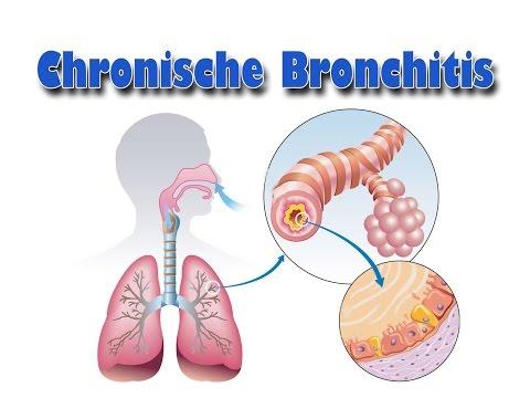 Erkrankungen der Atemwege - Chronische Bronchitis