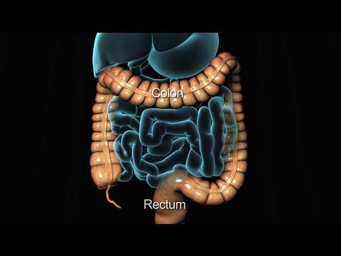 Colonoscopy Lower Gi Endoscopy Nucleus Health Youtube