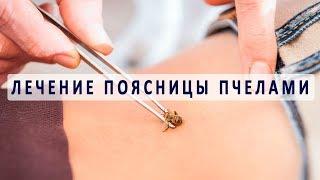 Лечение поясницы пчелами (апитерапия)