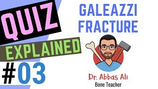 Case / Quiz Discussion No 03 - Galeazzi Fracture