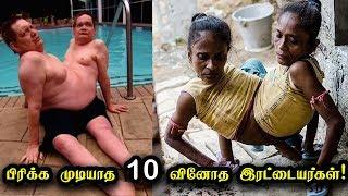 பிரிக்க முடியாத 10 வினோத இரட்டையர்கள்! | 10 of the World's Most Famous Conjoined Twins in Tamil