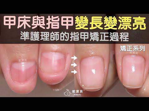 準護理師的指甲矯正過程-甲床與指甲變長變漂亮,問題指甲成功範例!