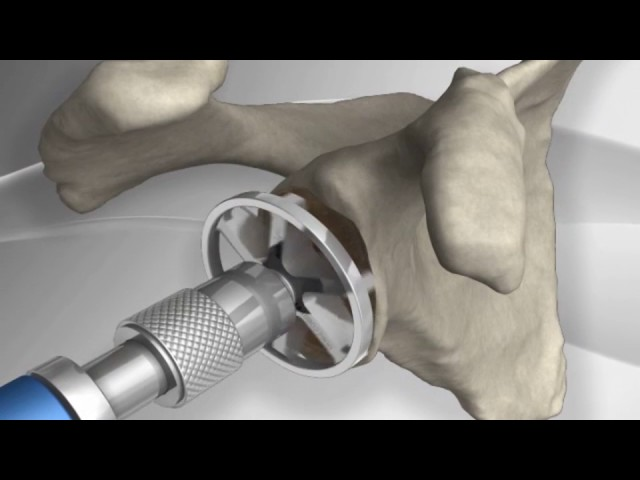 Total Shoulder Replacement with Arthrex® Univers™ II