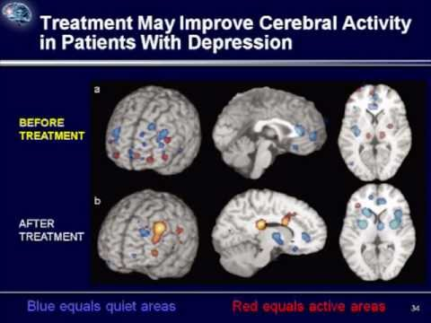 Depression : (5) The Effect of Treatment on the Brain ...