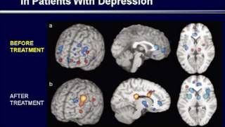 Depression : (5) The Effect of Treatment on the Brain