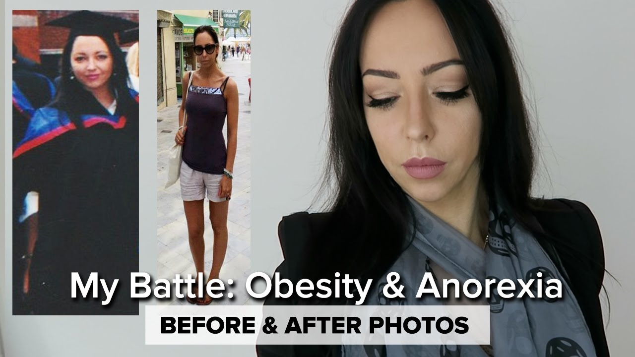 Anorexia and Weight Loss Films: Overview, Features and Reviews 75