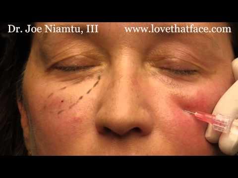 5 minute cheeks by Dr. Joe Niamtu, III