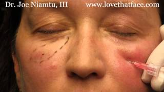5 minute cheeks by Dr. Joe Niamtu, III